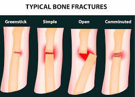 typical bone f