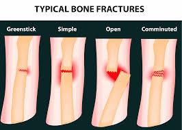 typical bone f