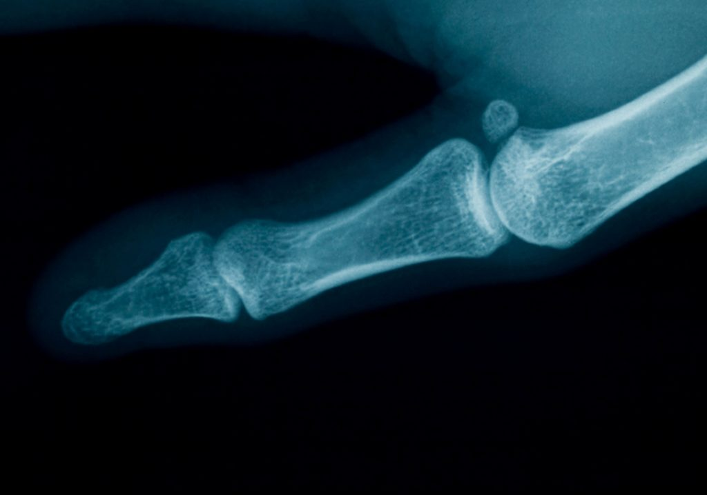 arthritis 1