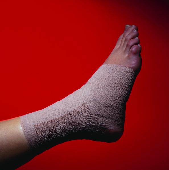 sprain ankle doctor boca raton